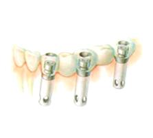 implant_99