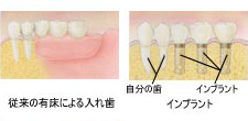 implant_merit-03